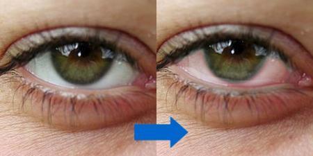 泣いたような瞳にする方法