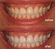 真っ白の歯を再現する方法ト